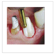 Picture for category Soft Tissue Trimmer